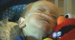 Akibat Menelan Baterai, Bocah 2 Tahun ini Harus Menjalani Operasi Hingga 18Kali
